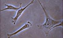fibroblaste